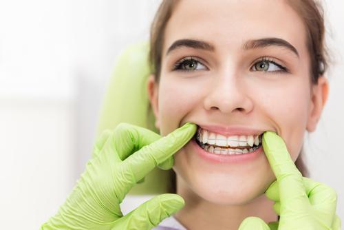 医師が回答きれいな歯並びになりたい大人の歯列矯正にかかる費用や期間とは
