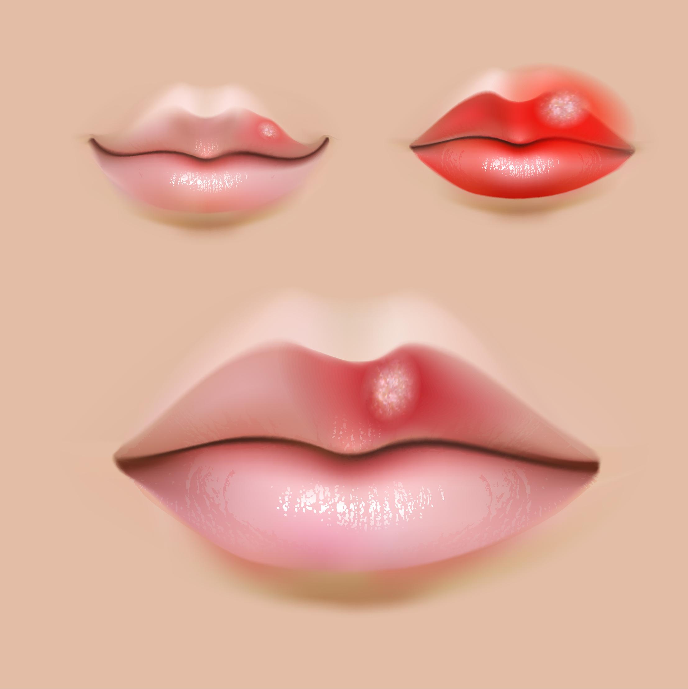 唇に白いブツブツができた際の適切な処置とは