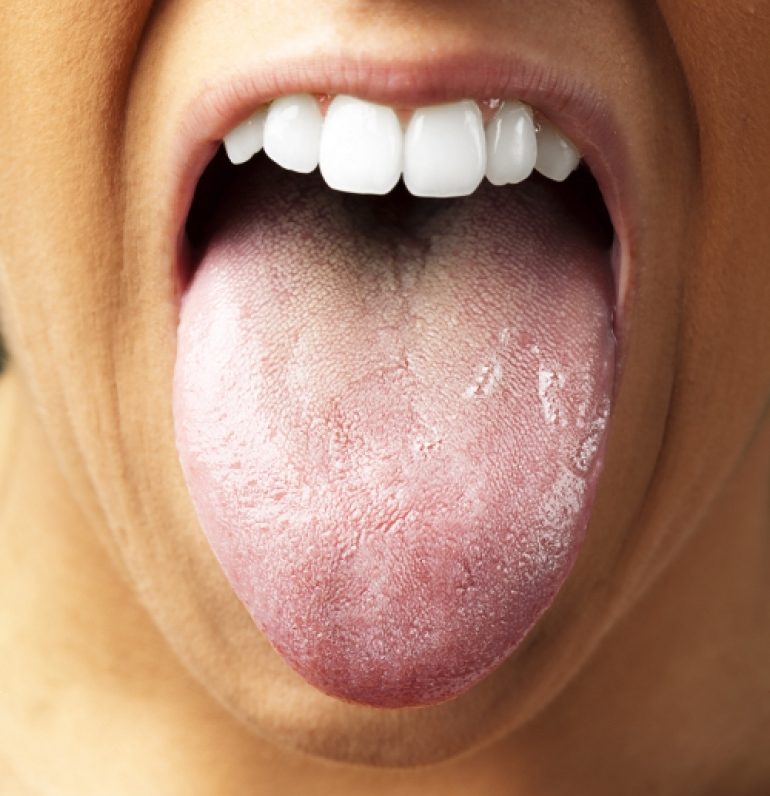 舌苔が異常発生!その原因はスト...