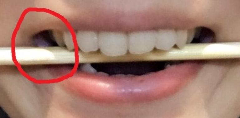口角が割り箸より上にくるように