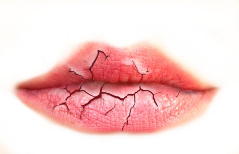 ひび割れた唇