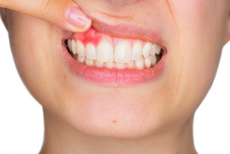 痒い 歯茎