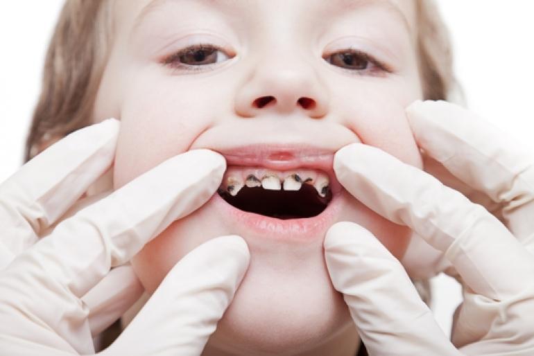 虫歯の少女